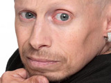 Verne Troyer wants