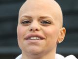 Jade Goody dies, aged 27